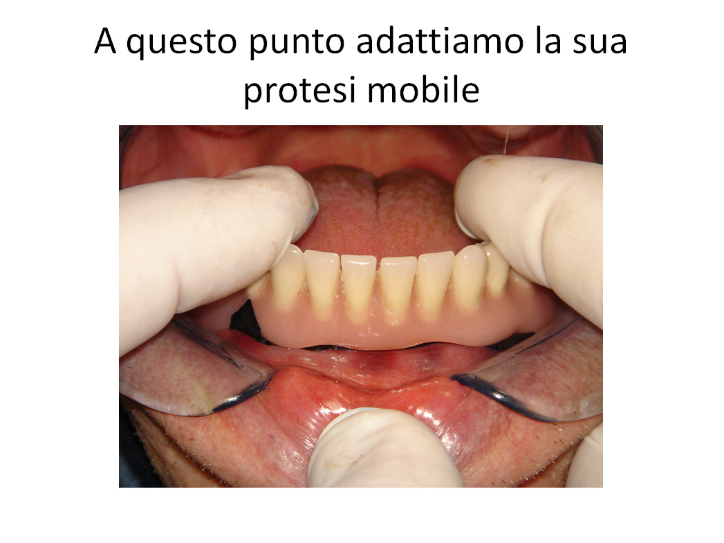 Protesi Totale Mobile a Carico Immediato